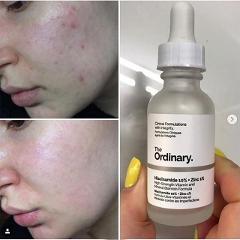 Hotsale High-Strength Ordinary Niacinamide 10% + Zinc 1% 30ML Face Serum Oil Balance Reduce Skin Blemishes Whitening Moisturizer