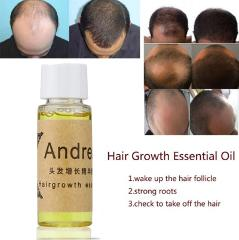 Andrea Hair Growth Anti Hair Loss Liquid 20ml 100% Natural Extract With Natural Hair Regrowth Fast,Thicker,Andrea Hair Growth Oi